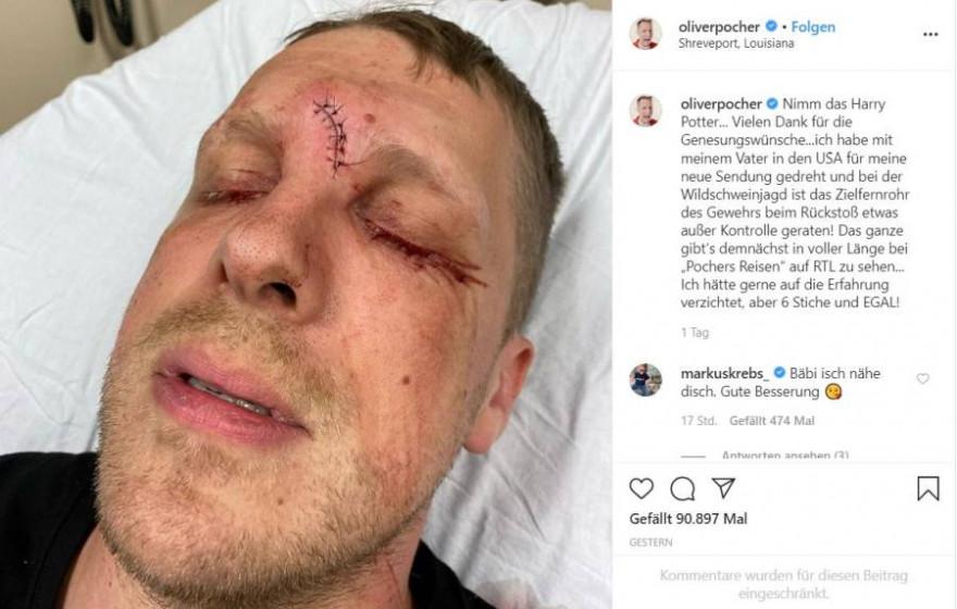 Dieses Foto postete Pocher aus dem Krankenhaus, in dem seine Platzwunde mit 6 Stichen genäht wurde (Quelle: Screenshot Instagram)